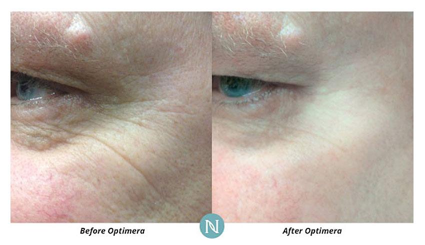 Nerium-International-Karen-Mathewson-Sudbury-Ontario-Before-After-Fine-Lines-Eyes-Optimera-Anti-Aging-Age-Defying-Eye-Serum