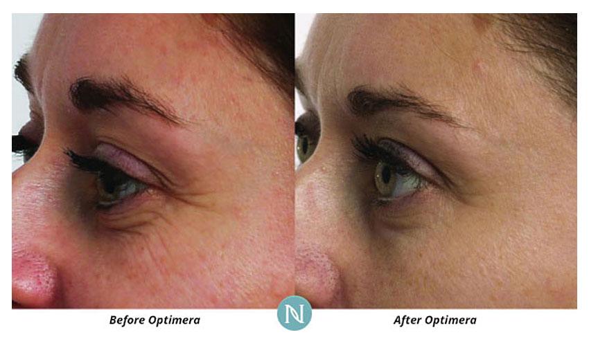 Nerium-International-Karen-Mathewson-Sudbury-Ontario-Before-After-No-More-Wrinkles-Crows-Feet-Age-Defying-Eye-Serum-Antiaging-Eye-Cream