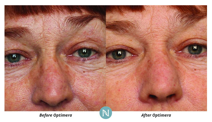 Nerium-International-Karen-Mathewson-Sudbury-Ontario-Improved-Skin-Texture-Before-After-Photo-Skincare-Skin-Creams