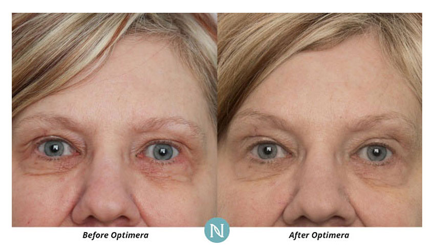 Nerium-International-Karen-Mathewson-Sudbury-Ontario-Skin-Care-Discoloration-Before-After-Optimera-by-Nerium