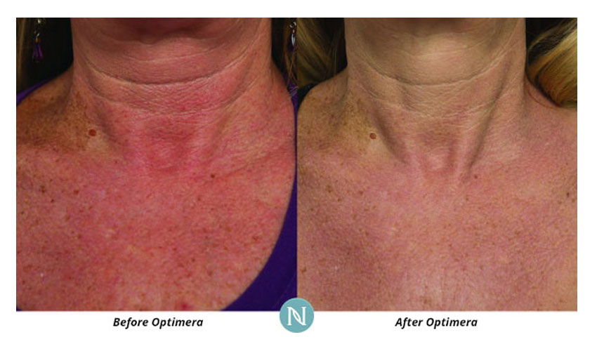 Nerium-International-Karen-Mathewson-Sudbury-Ontario-Skin-Care-Face-Neck-Chest-Skincare-Corrects-Discoloration-Before-After-Optimera-Results